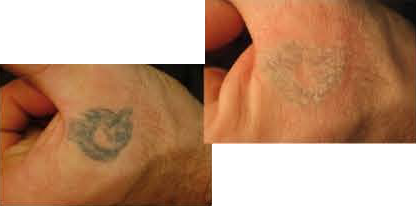 Page_1_-_Tattoo_Removal